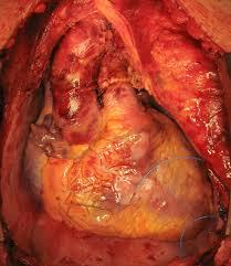 heart ugly